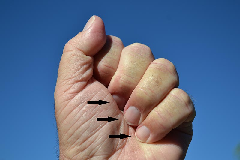 Exposed fingernails demonstrate positive fist sign for inclusion body myositis