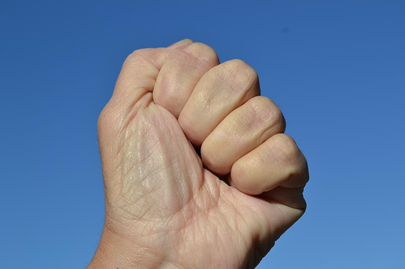 Normal fist. No evidence of inclusion body myositis. Negative fist sign.