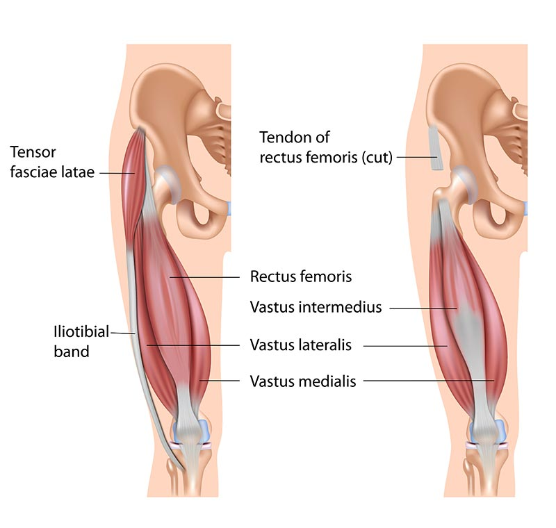 Anatomical illustration of the quadriceps muscle